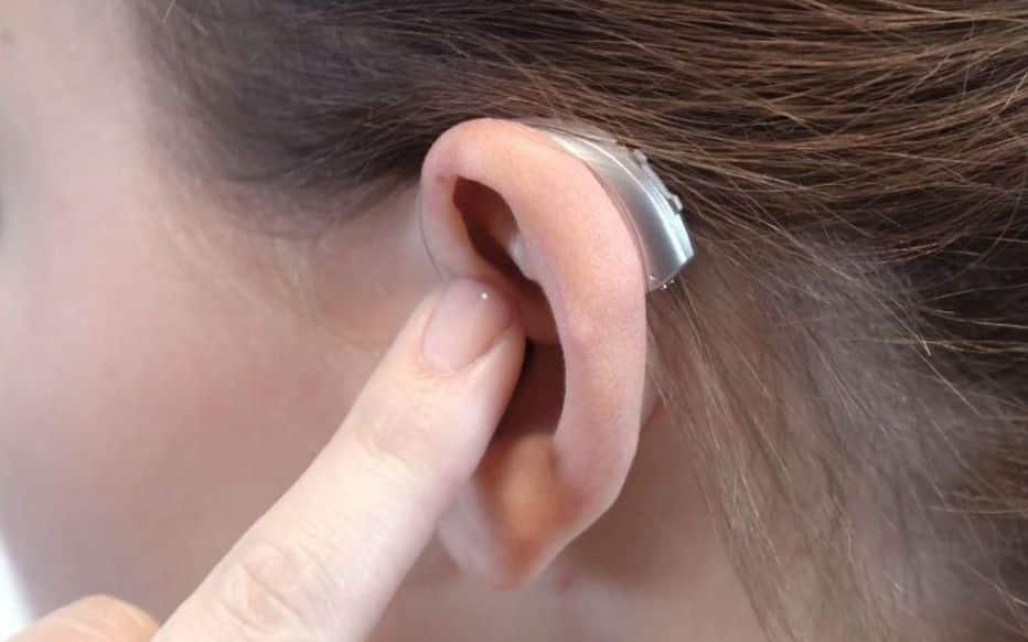 Quels sont les avantages d'une audioprothèse ?